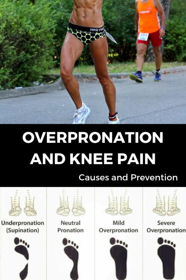 Overpronation and Knee Pain